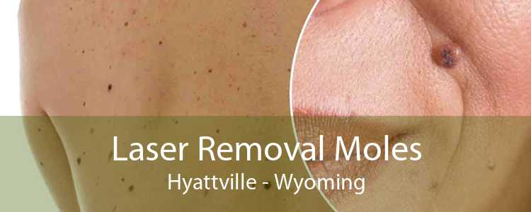 Laser Removal Moles Hyattville - Wyoming