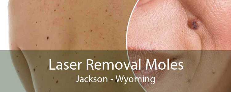 Laser Removal Moles Jackson - Wyoming