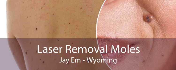 Laser Removal Moles Jay Em - Wyoming