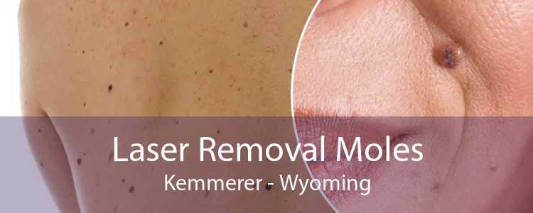 Laser Removal Moles Kemmerer - Wyoming
