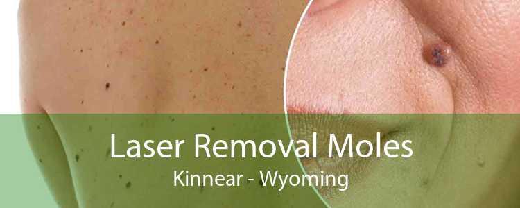 Laser Removal Moles Kinnear - Wyoming
