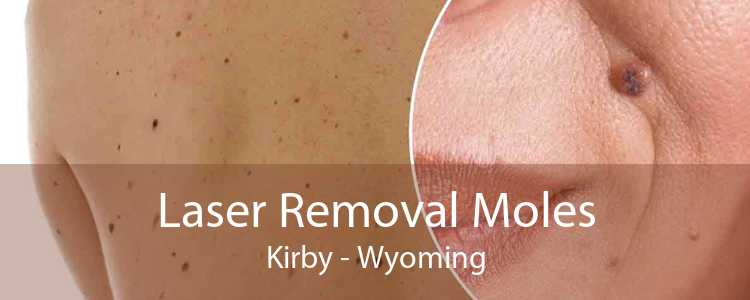 Laser Removal Moles Kirby - Wyoming