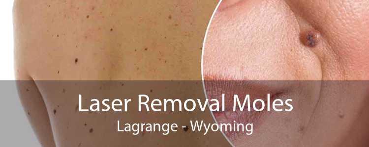 Laser Removal Moles Lagrange - Wyoming
