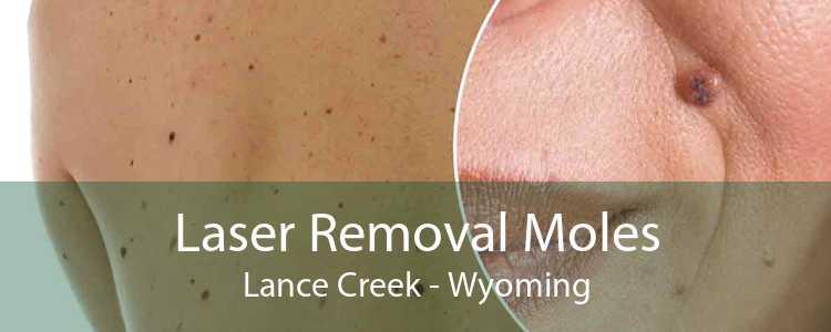 Laser Removal Moles Lance Creek - Wyoming