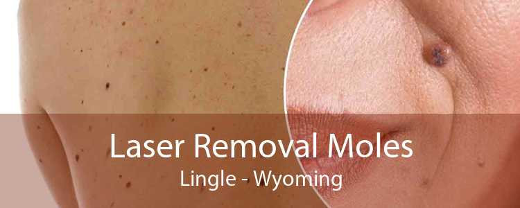 Laser Removal Moles Lingle - Wyoming