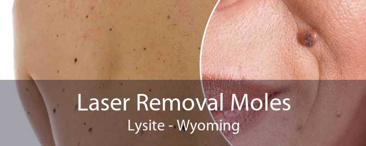 Laser Removal Moles Lysite - Wyoming