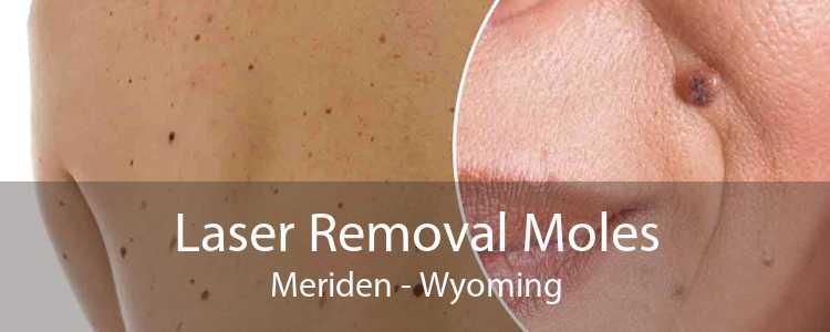 Laser Removal Moles Meriden - Wyoming