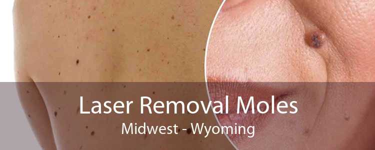 Laser Removal Moles Midwest - Wyoming