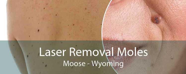 Laser Removal Moles Moose - Wyoming