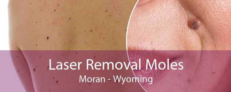 Laser Removal Moles Moran - Wyoming