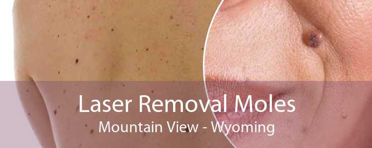 Laser Removal Moles Mountain View - Wyoming