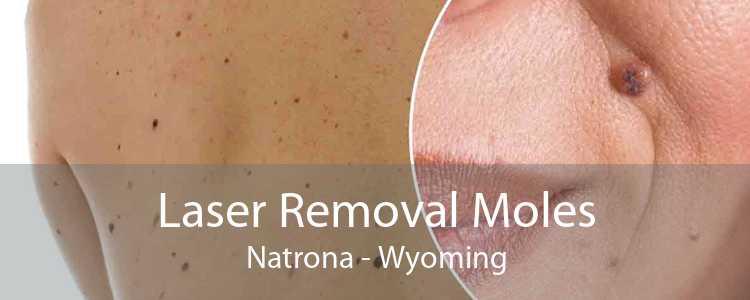 Laser Removal Moles Natrona - Wyoming