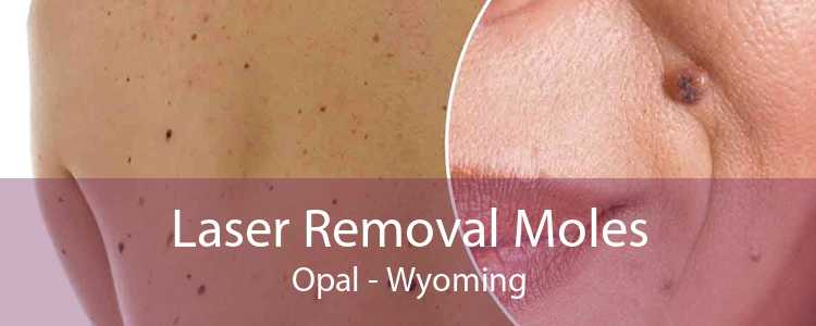 Laser Removal Moles Opal - Wyoming