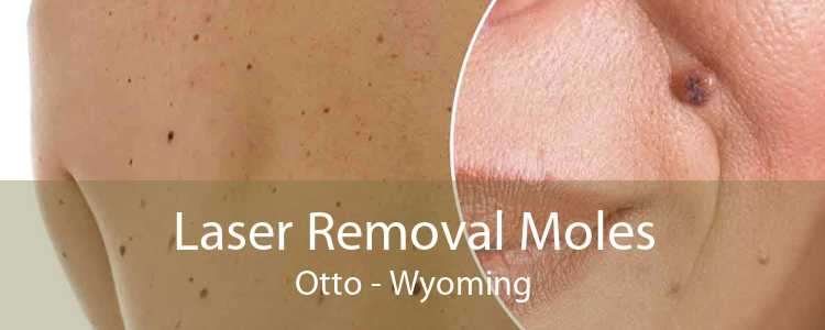 Laser Removal Moles Otto - Wyoming