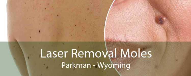 Laser Removal Moles Parkman - Wyoming