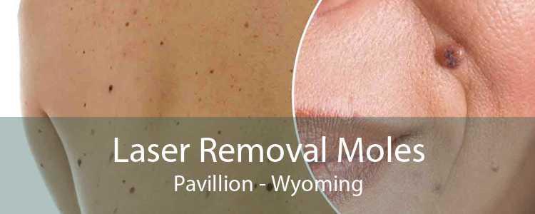 Laser Removal Moles Pavillion - Wyoming