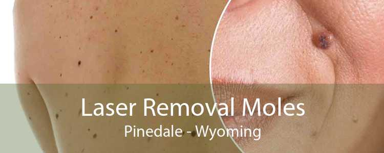 Laser Removal Moles Pinedale - Wyoming