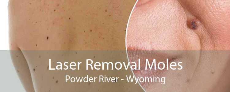 Laser Removal Moles Powder River - Wyoming