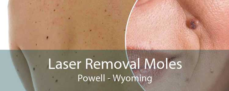 Laser Removal Moles Powell - Wyoming