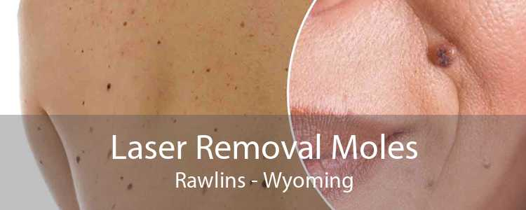 Laser Removal Moles Rawlins - Wyoming