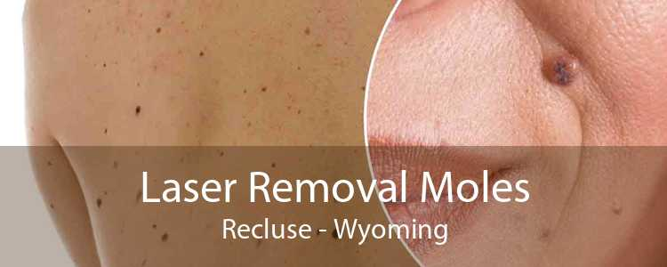 Laser Removal Moles Recluse - Wyoming