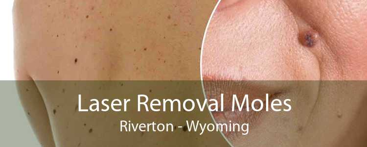 Laser Removal Moles Riverton - Wyoming