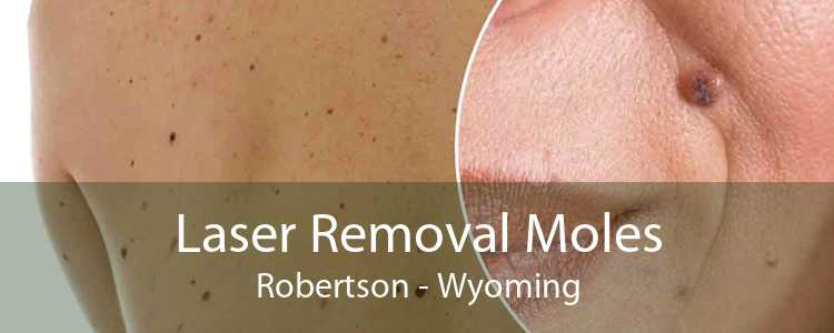 Laser Removal Moles Robertson - Wyoming