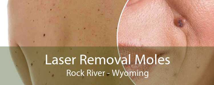 Laser Removal Moles Rock River - Wyoming