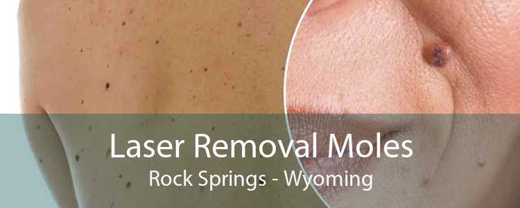 Laser Removal Moles Rock Springs - Wyoming