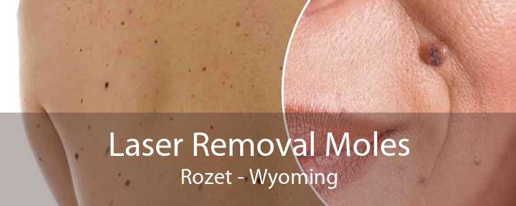 Laser Removal Moles Rozet - Wyoming