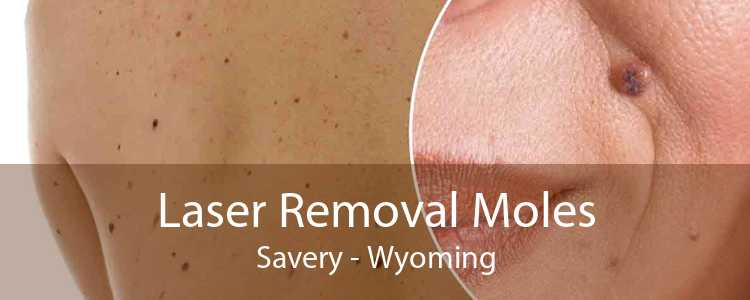 Laser Removal Moles Savery - Wyoming