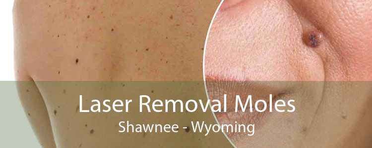 Laser Removal Moles Shawnee - Wyoming