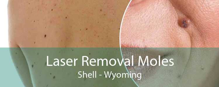 Laser Removal Moles Shell - Wyoming
