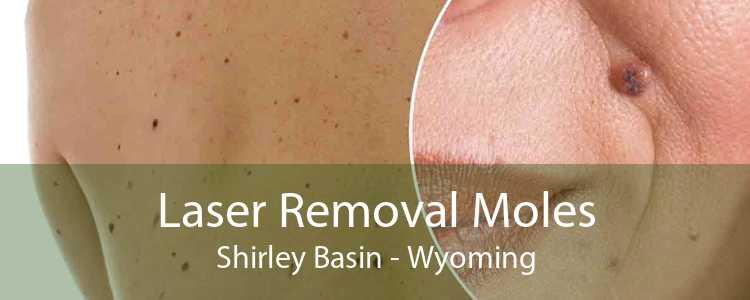 Laser Removal Moles Shirley Basin - Wyoming