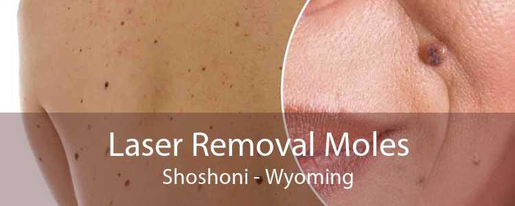 Laser Removal Moles Shoshoni - Wyoming