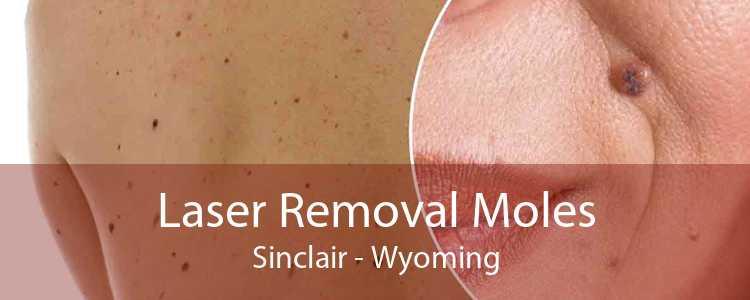 Laser Removal Moles Sinclair - Wyoming