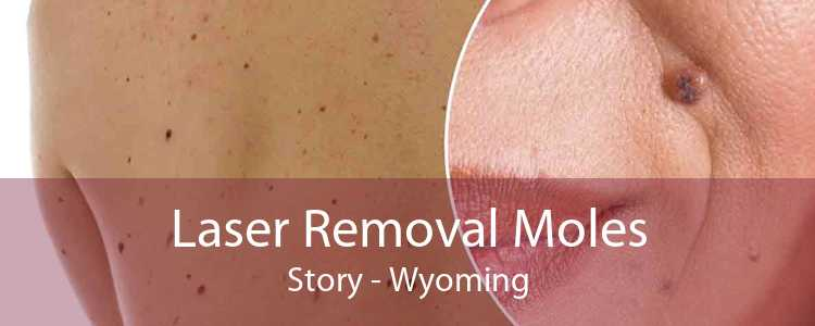 Laser Removal Moles Story - Wyoming