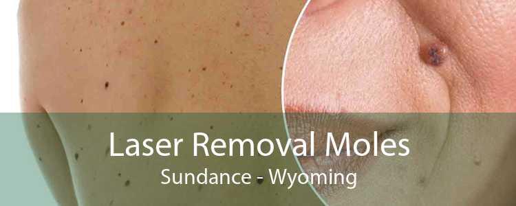 Laser Removal Moles Sundance - Wyoming