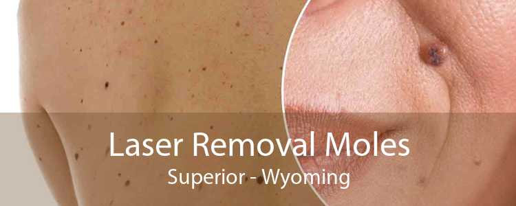 Laser Removal Moles Superior - Wyoming