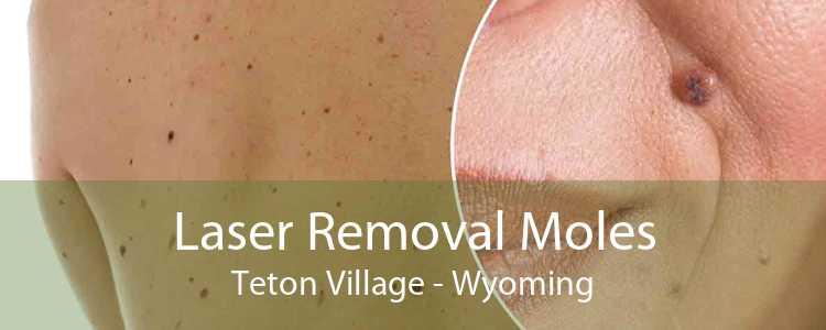 Laser Removal Moles Teton Village - Wyoming