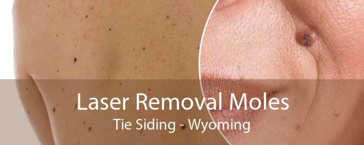 Laser Removal Moles Tie Siding - Wyoming