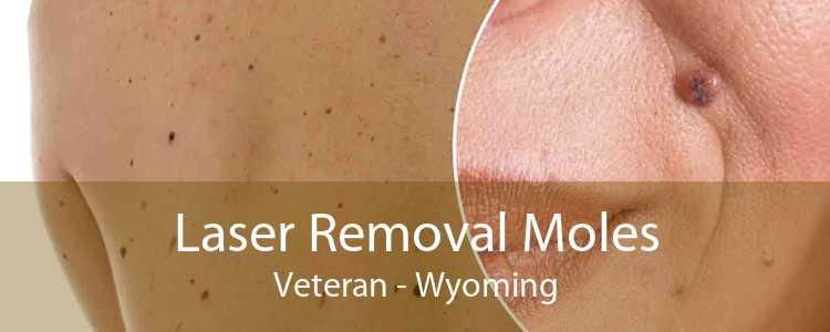 Laser Removal Moles Veteran - Wyoming