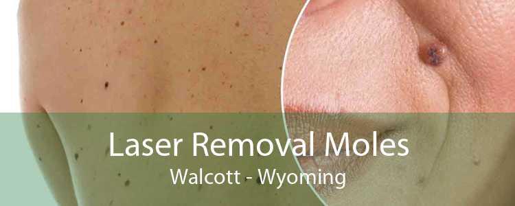 Laser Removal Moles Walcott - Wyoming