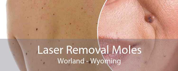 Laser Removal Moles Worland - Wyoming