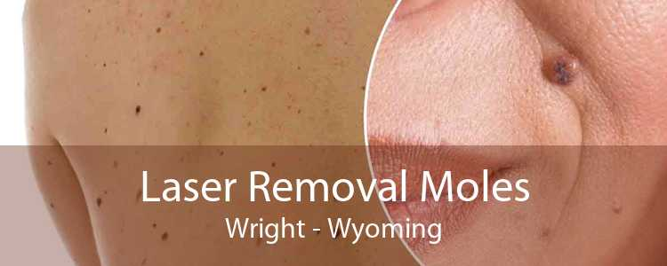 Laser Removal Moles Wright - Wyoming