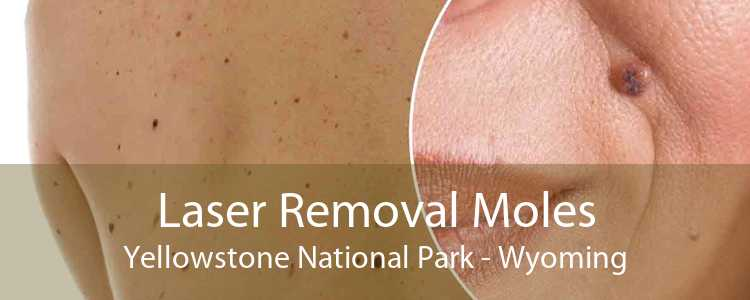Laser Removal Moles Yellowstone National Park - Wyoming