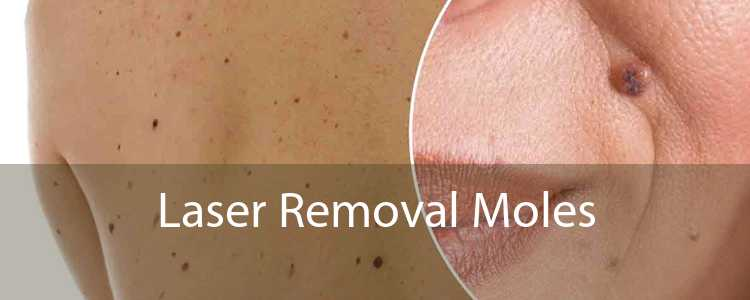 Laser Removal Moles