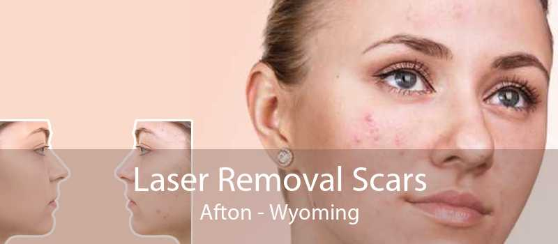 Laser Removal Scars Afton - Wyoming