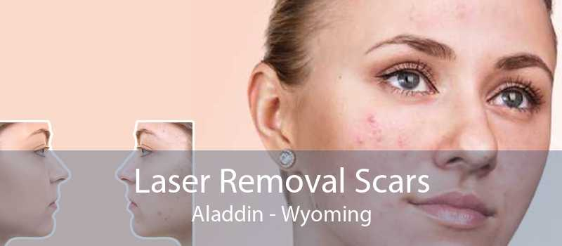 Laser Removal Scars Aladdin - Wyoming