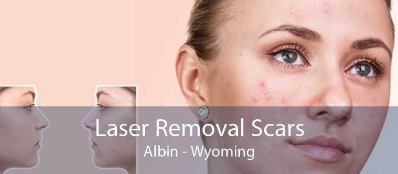 Laser Removal Scars Albin - Wyoming